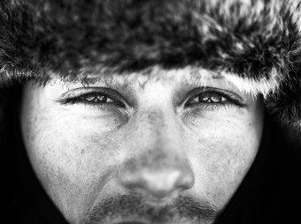 Consecuencias del frío y el viento en la piel del hombre